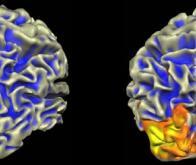 Thérapie génique de l'amaurose congénitale de Leber : il est possible de traiter les deux yeux !