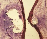 Thérapie génique : un nouveau vecteur viral ouvre la voie au traitement de nombreuses maladies ...