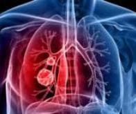 Transgene : 1er patient traité dans l'essai de Phase 2 avec TG4010 dans le cancer du poumon