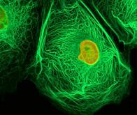 Un cancer sur six d'origine infectieuse
