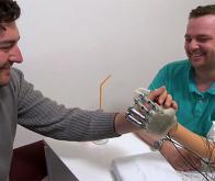 Un implant bionique permet à un amputé de retrouver le sens du toucher !
