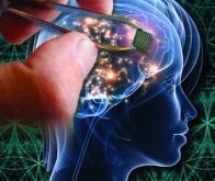 Un implant cérébral pour synthétiser la voix