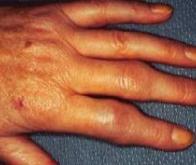 Un lien génétique entre polyarthrite rhumatoïde et maladie de Huntington