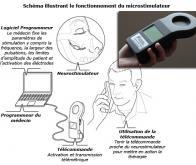 Un microstimulateur contre certaines céphalées