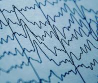 Un modèle neuroinformatique décode la parole en la prédisant