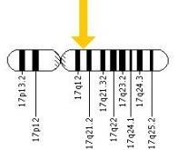Un nouveau gène de susceptibilité au cancer du sein