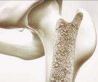 Un nouveau matériau pourrait révolutionner la prise en charge des fractures