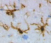 Un nouveau mécanisme moléculaire éclaire la maladie d'Alzheimer