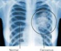 Un nouveau médicament contre le cancer du poumon non à petites cellules