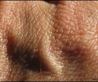 Un nouvel antibiotique découvert dans le microbiote de la peau
