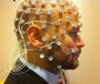 Un programme informatique pour prévoir les crises d'épilepsie
