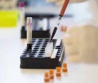 Un test COVID-19 détecte des anticorps dans une petite goutte de sang