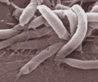 Une bactérie responsable de la maladie de Parkinson ?