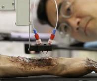 Une bio-imprimante 3D mobile imprime de la peau directement sur des plaies