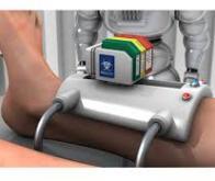Une bio-imprimante de peau au chevet du patient