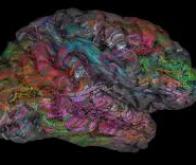 Une carte du cerveau clarifie la répartition des fonctions entre hémisphère gauche et hémisphère ...