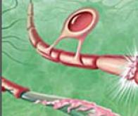 Une des molécules responsables de la sclérose en plaques identifiée