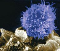 Une firme française réussit à reprogrammer les cellules immunitaires pour les mobiliser contre le ...
