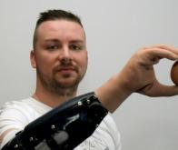 Une main bionique aussi efficace qu'une main greffée !