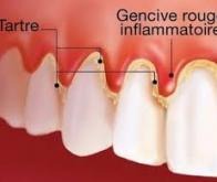 Une maladie des gencives à l'origine de la polyarthrite rhumatoïde ?