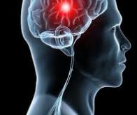 Une molécule efficace à la fois contre l'AVC et la maladie d'Alzheimer