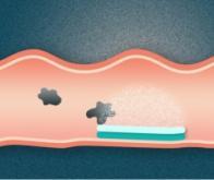 Une nouvelle forme galénique : la pilule à double face