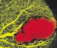 Une nouvelle imagerie médicale combine laser et ultrasons