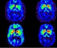 Une nouvelle molécule contre la maladie de Parkinson