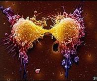 Une nouvelle molécule qui affame les cellules cancéreuses