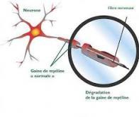 Une nouvelle thérapie génique contre l'adrénoleucodystrophie