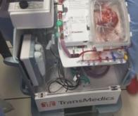 Une première médicale au CHU de Lille pourrait augmenter le nombre de greffes cardiaques en France