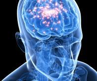 Une première mondiale et une avancée majeure dans le traitement chirurgical de l'épilepsie ...
