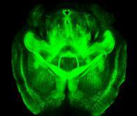 Une recette pour rendre le cerveau transparent !