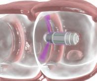 Une solution révolutionnaire pour le dépistage du cancer du côlon