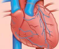 Vers un médicament qui réduit les dommages cellulaires après une crise cardiaque