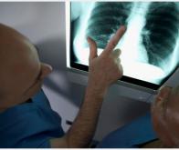 Vers un test sanguin pour détecter le cancer du poumon