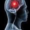 Une IA pour aider les médecins à détecter les hémorragies cérébrales