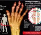 Arthrose : des pistes pour réparer le cartilage