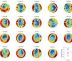 Autisme : des différences de structure découvertes dans le cerveau