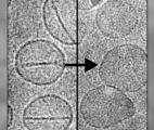 Cancer : des nanocapsules déclenchées par laser…