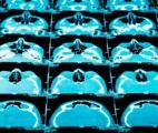 Cancer du cerveau de l'enfant : enfin une nouvelle piste thérapeutique
