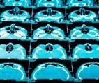 Cancer du cerveau : un nouveau traitement à l'essai