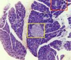 Cancer du pancréas : un  diagnostic précoce grâce à l' imagerie à fluorescence