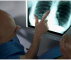 Cancer du poumon : un nouveau mécanisme de développement des tumeurs identifié