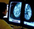 Cancer du sein : une nouvelle thérapie ciblée