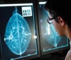 Cancer du sein : une radiothérapie innovante au bloc opératoire