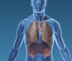Cancers pulmonaires : lever la résistance aux thérapies ciblées