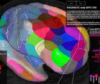 De nouvelles propriétés électriques observées dans le cerveau humain