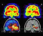 Découverte d'un nouveau mode de propagation des crises d'épilepsie dans le cerveau