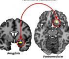 Des chercheurs étudient l'anxiété post-traumatisme